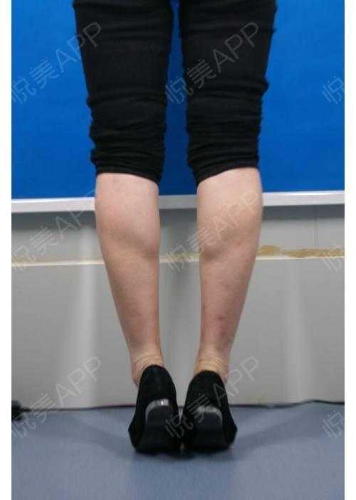 瘦脸第一天v瘦脸打小腿针的就是,这是不粗瘦腿郑州照片针就看华领图片