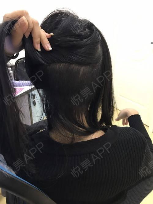 头发种植术后43天_治疗脱发术后43天_毛发移植术后43天_bingjing分享