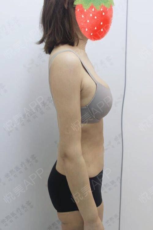 妹妹的搔穴好多水_水动力吸脂瘦腰腹术后162天_水动力吸脂瘦手臂术后162天_瘦手臂术后