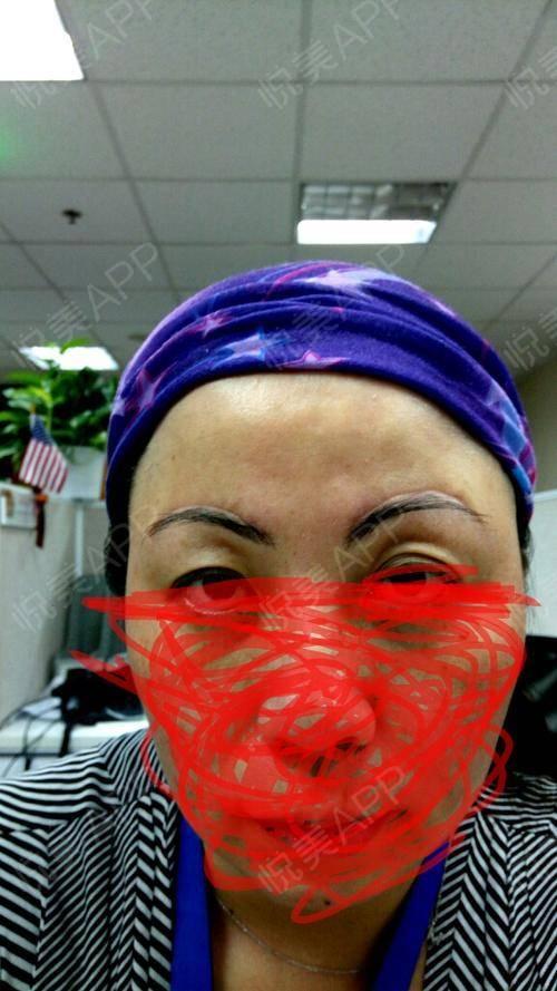 手术后装的假眼球图片_做完手术已经整整两个月了,上传效果照片,供大家参考.
