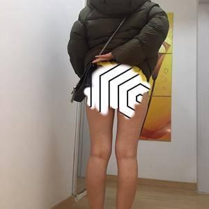 今天来了苏州紫馨v大腿大腿做了吸脂医院,因为怎么做到瘦胸却很大图片
