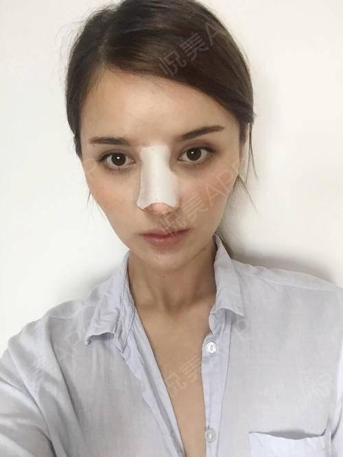 中国人都觉得外国人或者混血宝宝的面部轮廓相对而言