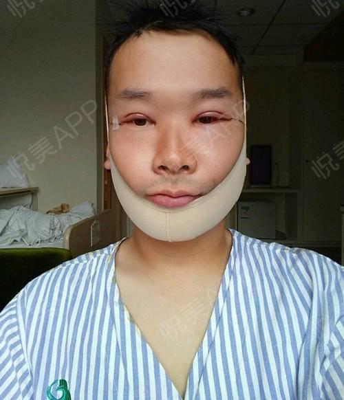 【上海华美李志海博士长曲线下颌角】目前还是住院的.