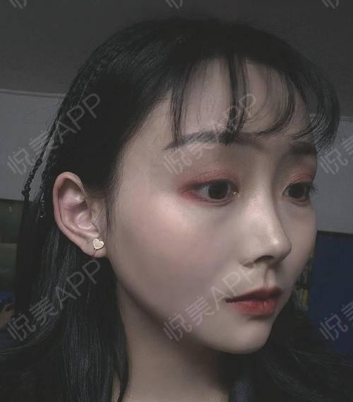 【上海华美李志海博士长曲线下颌角】破茧成蝶的过程是痛苦的,要想成