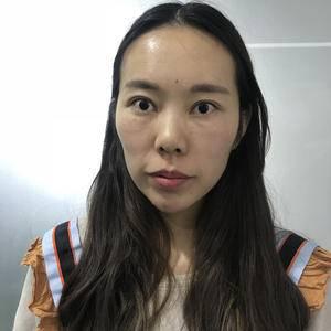 北京炫美X+1精雕鼻综合