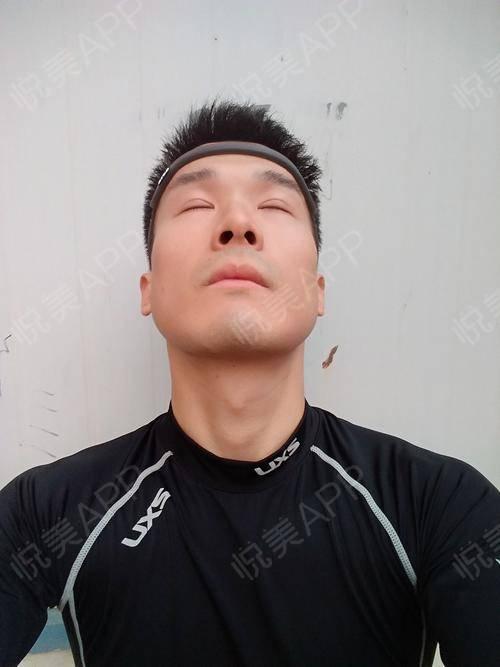 【上海华美李志海博士长曲线下颌角】距离手术过去.