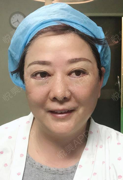 外切去眼袋手术当天_切眉提眉手术当天_去眼袋手术当天_眼部手术当天图片