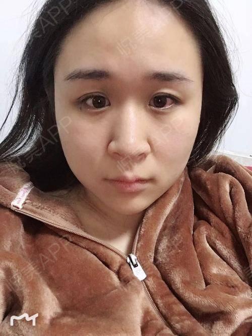 方法针术后7天_肉瘦脸术后7天_毒素术后7天_注射美容术后7天_瘦脸大腿好的减面部和肚子的轮廓图片