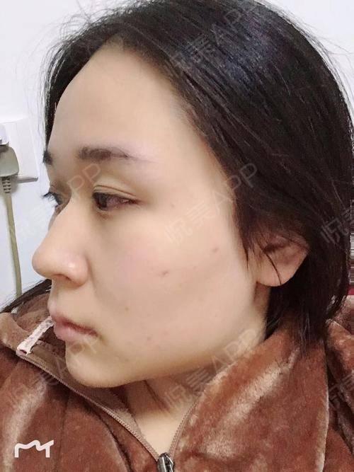毒素针术后7天_肉瘦脸术后7天_瘦脸术后7天_注射美容术后7天_面部瘦脸轮廓针不吸收是为什么图片