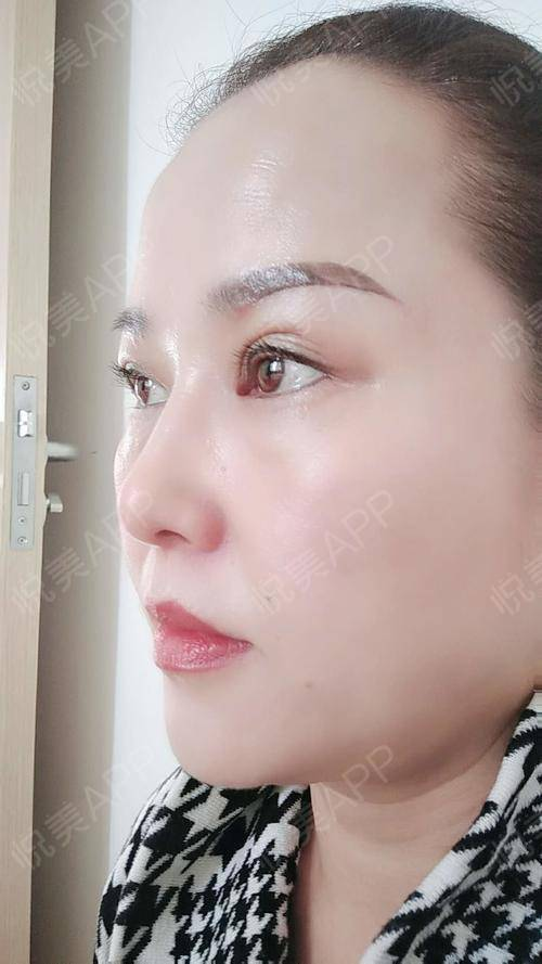 切眉提眉术后27天_埋线双眼皮术后27天_眼周年轻化术后27天_双眼皮术图片