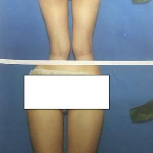 大腿吸脂、大腿360°环吸