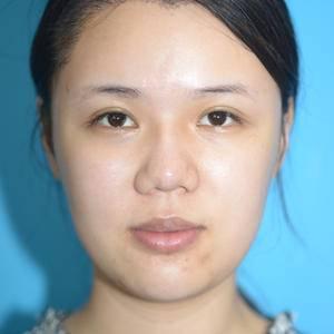 北京鼻部修复 鼻综合