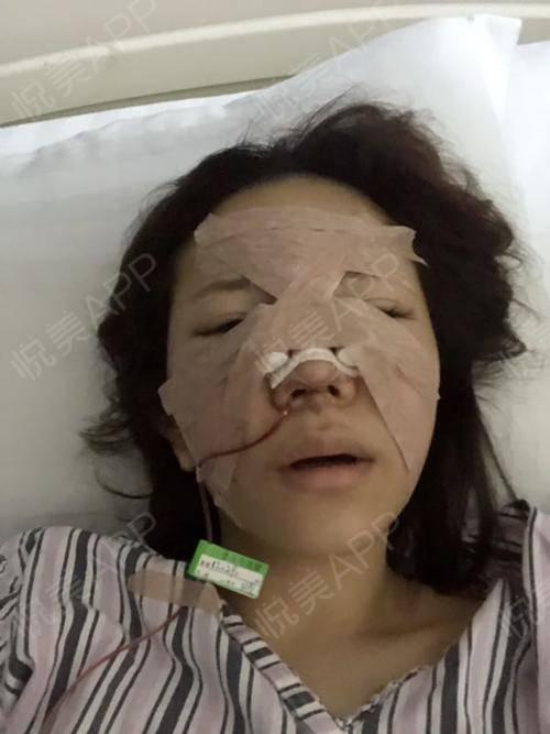 鼻子丑了这么多年,今天终于都可以正式跟你说byebye了~手术前医院帮我