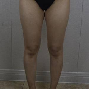 大腿环吸术后分享