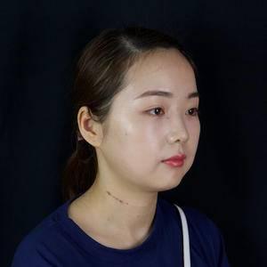 创可贴面部吸脂少女线打造