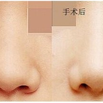 鼻翼缩小-手术缩小鼻翼