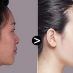 玻尿酸隆鼻能保持多久?如果鼻子不美,做手术怕疤痕等,这些担忧的事情相...