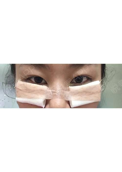 都一个月了,还是有眼袋,真是哭笑不得,医生技术真好,呵呵