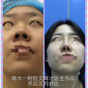 重睑并综合隆鼻手术五月对比。改观如何呀