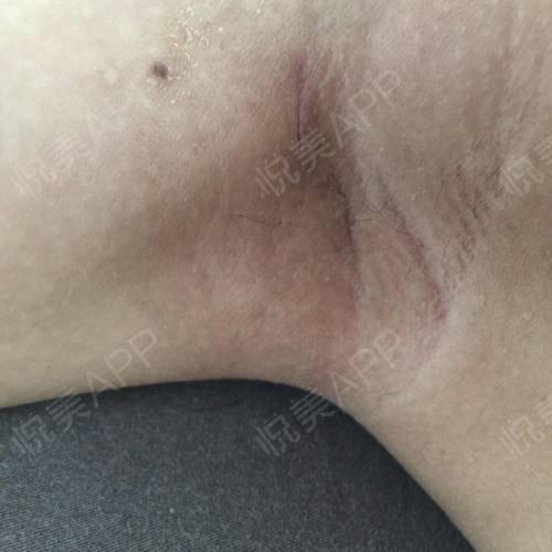 看到伤口恢复得这么好是不是有点羡慕啊。还有两个月就是夏天了希望能恢复得不留痕迹就好了,那样抬手臂就没有压力了。