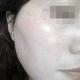 脸上的斑终于干净了很多,从第一次做祛斑到现在为止都快半年了,效果还是满意的!虽然还有点点零星的,做完...