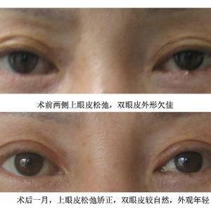 案例分享——双眼皮3