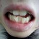 洁了下牙,准备再取模正畸。刘医生超级帅,我是花痴粉。