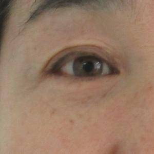 外切眼袋术后1年对比照片
