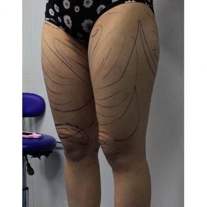 水动力吸脂瘦腰腿
