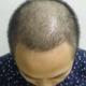 成都科发源王成 今天是植发的第29天了,马上就一个月了,这个星期啊!特别的震撼啊,头发开始快速的脱落了...
