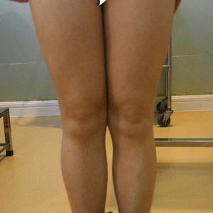 水动力吸脂瘦大腿