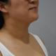 大家快看做完之后的效果,很明显有没有,皮肤紧致水嫩的同时,颈纹也变得淡了,刘主任说自己现在一起床,脖子都是润润的。