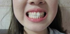 【长沙美莱-牙齿矫正案例日记分享】