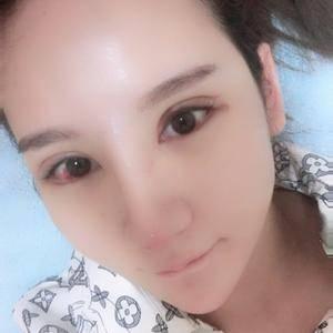 Cerina面部大改造:眼鼻修复+面部吸脂术后3天第3页图