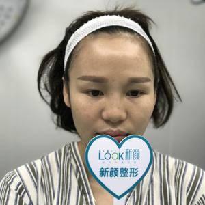 鼻部二次修复+眼综合+自体脂肪填充太