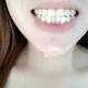 牙齿有些黄还有氟斑牙门牙也不齐预约的冷光美白牙龈有些肿今天洗了一下牙牙齿美白要等几天才能做医生很负责...