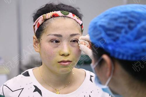【长沙嘉悦莱切开双眼皮手术当天】一直想做双