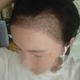 """""""术后十三天了,头发长的特别好,种上去的头发已经越长越长了,而且挺黑挺浓密的,简直开心到飞起!现在头皮也没有什么不适了,就..."""
