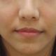 打完隔两天眼睛还是有点肿,眼睛下方有点淤血,不过化妆就可以盖掉了~~~术后第一次回诊,本來要继续补泪...