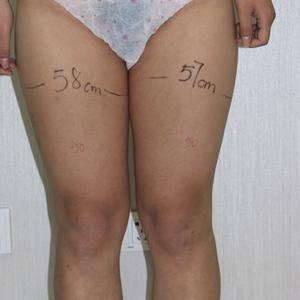 天津知妍医疗美容大腿环吸招募模特