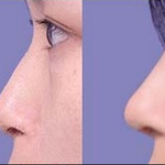 注射玻尿酸隆鼻注意事项