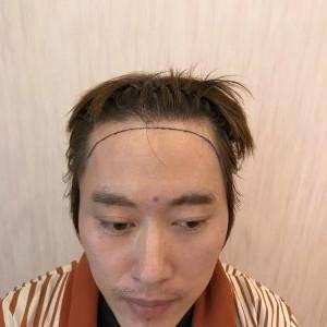 今天来做植发