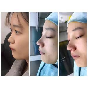 耳软骨鼻综合