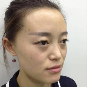 新疆乌鲁木齐黎美整形美容鼻综合手术