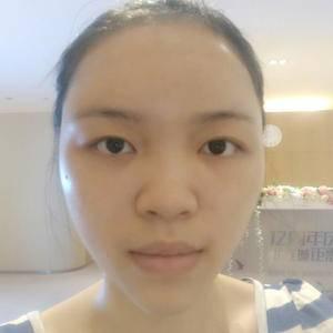 假体隆鼻前后对比