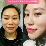 内江洋子医疗美容诊所的日记分享第1页图 1