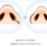 鼻翼缩小术,你了解多少?