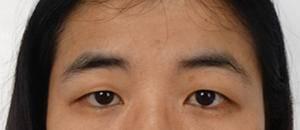 眼部综合整形