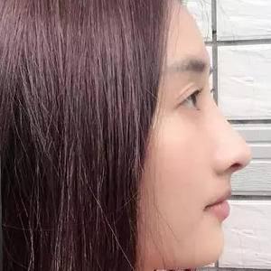 民航广州医院+自体肋软骨隆鼻(肋软骨