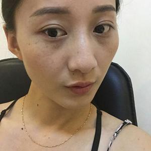 激光无创祛斑术治疗过程和效果对比图